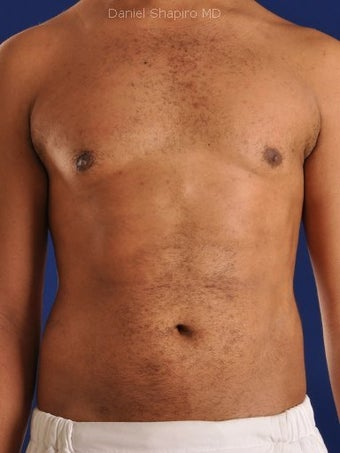 Vaser Hi Def Liposuction of the abdomen, chest, back, and flanks with fat injections to the pectoralis region after 422699