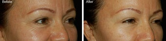 Botox for Crows Feet  before 97875
