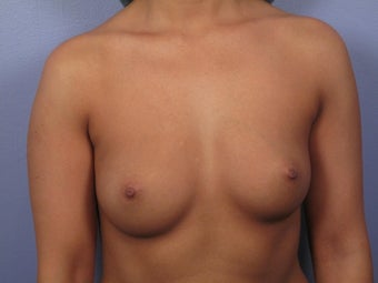 Breast Augmentation  before 338701