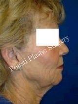 Face Lift, Neck Lift 632177