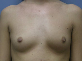 Breast Augmentation before 510237