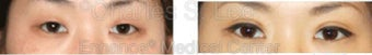 Blepharoplasty before 427714