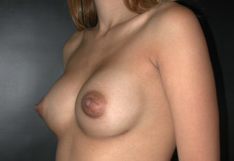 Breast Augmentation after 110085
