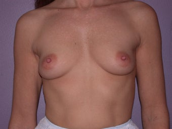 Breast Implants  before 305412
