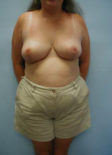 Breast Augmentation Surgery (No Implants) after 124970