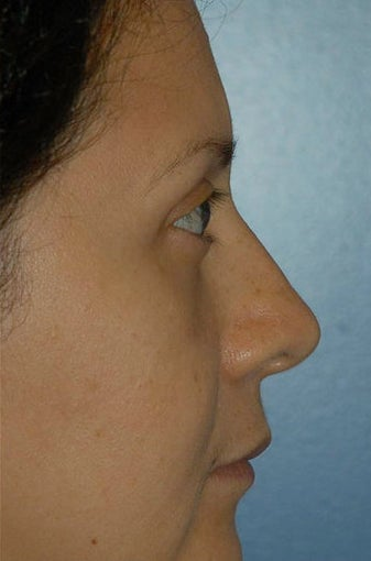 Upper and lower lid blepharoplasty and Fat Transfer to lower lids and midface 307125