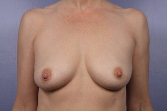 Breast Augmentation before 466412