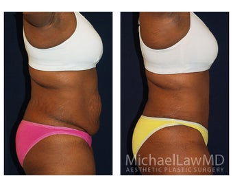 Abdominoplasty - Tummy Tuck 396144