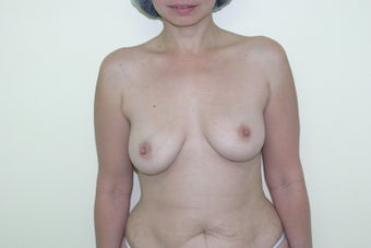 Breast augmentation before 365702
