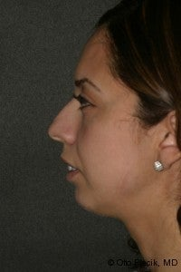 Chin Augmentation  before 565883