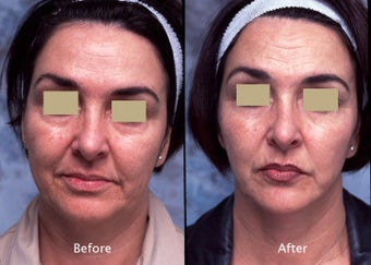 Lower face and neck liposuction