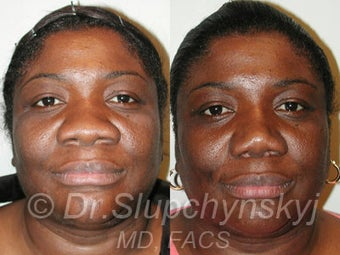 African American Rhinoplasty before 525577