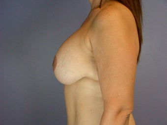 Breast lift and Implants after 306370