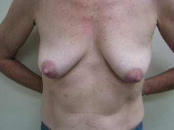 Breast Reconstruction Immediate  before 347580