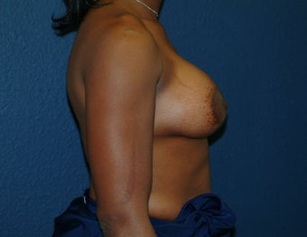 Breast Augmentation 575278