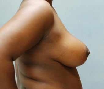 Breast Reduction after 221287