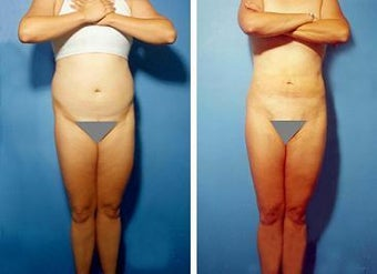 Liposuction before 636218