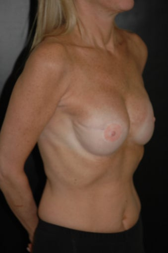 Breast Reconstruction with Implants after 357323