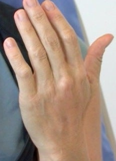 Radiesse Hand Rejuvenation  after 371749