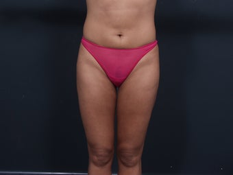 Liposuction after 462488
