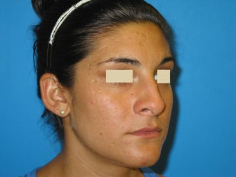 Rhinoplasty and scar removal