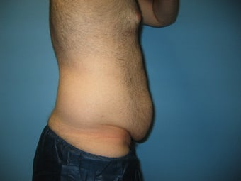 Male tummy tuck 448698