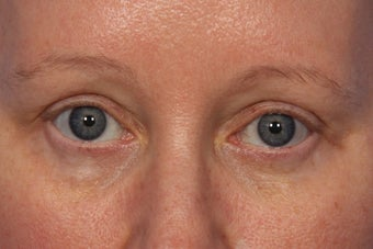Botox to Crows Feet and Between Eyes (Glabella) after 308334