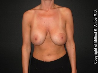 Breast Implant Revision before 542392