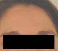 Melasma Treatment  after 120086