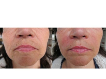 Juvederm Ultra & Ultra Plus XC before 359466