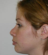 Revision Rhinoplasty before 222492