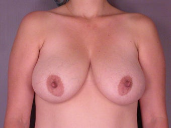 Breast Lift  before 311053