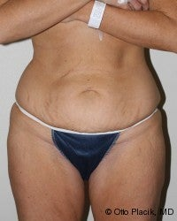 Abdominoplasty before 565805
