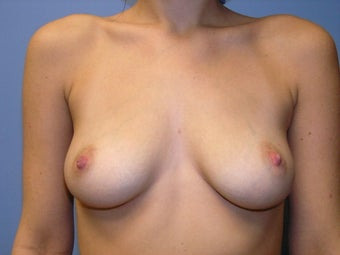 Breast Augmentation before 168014