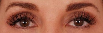 Eyelash Growth from Latisse after 271675