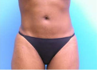 Abdominal Liposuction after 64909