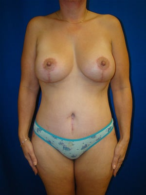 Extended Tummy Tuck, Breast Lift with Implants after 154505