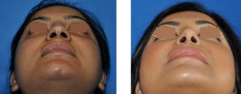 Rhinoplasty before 271491