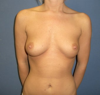 Maximum Breast Augmentation.   before 309979