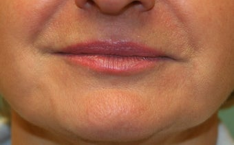 Restylane around the mouth after 240869