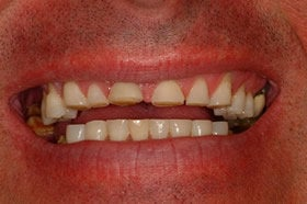 Smile Makeover With Empress All Ceramic Crowns before 96899