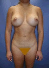 Liposculpture, Liposuction and Breast Augmentation after 151054