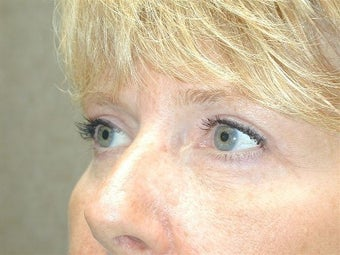 Bilateral Upper Blepharoplasty and Lower Lid Pinch 425056