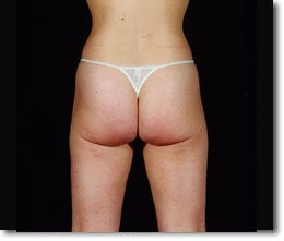 Laser Liposuction after 650391
