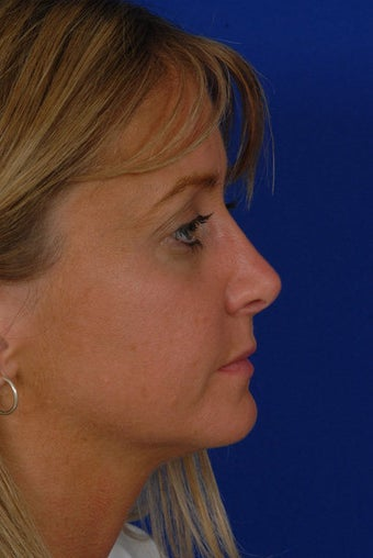 Revision Rhinoplasty after 274191
