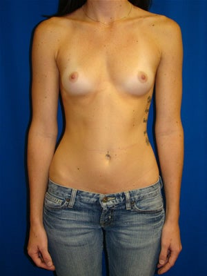 Breast Augmentation Surgery before 135303