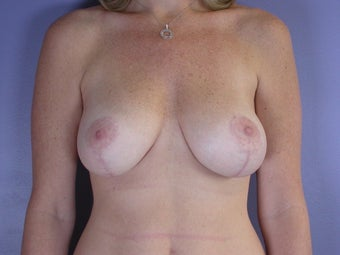 Breast lift with implants after 321667