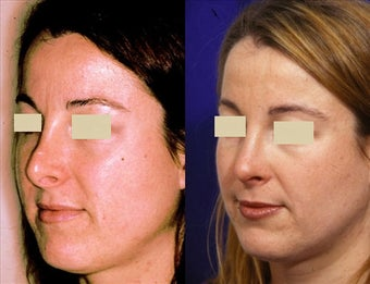 Revision Rhinoplasty before 127037