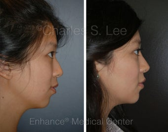 Blepharoplasty, Rhinoplasty, Chin Augmentation before 426962