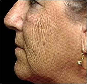 CO2 Laser Skin Resurfacing before 255555